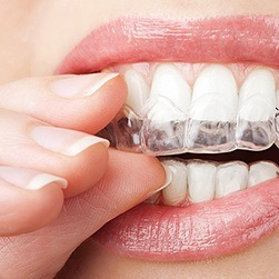Patient placing at-home whitening tray