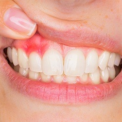 Closeup of red and inflamed gums